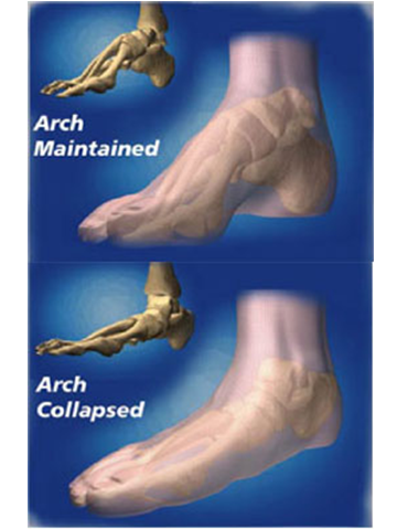 orthoticsarch
